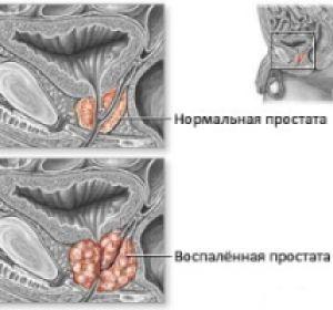 Простатит: симптомы и способы лечения