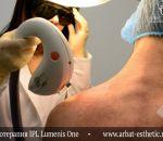 Гиперпигментация кожи — причины, признаки и лечение