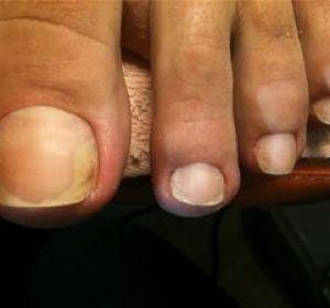 Кандидоз кожи — первые признаки и лечение