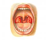 Фолликулярная ангина: причины, симптомы и лечение