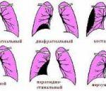 Экссудативный плеврит: причины, симптомы и лечение гидроторакса