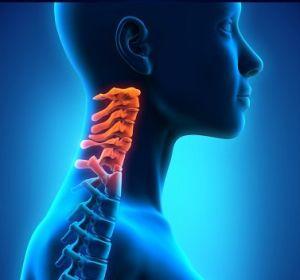 Шейный спондилез: виды, причины, симптомы и лечение