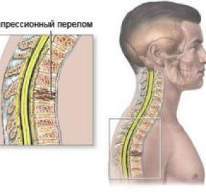 К чему может привести компрессионный перелом позвоночника и как его лечить