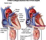 Трикуспидальная недостаточность: причины, симптомы и лечение порока