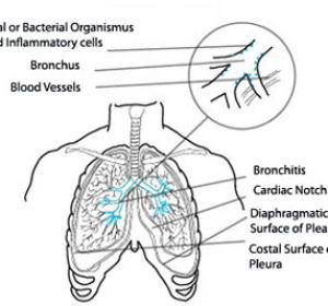 Симптомы аллергического бронхита у взрослых — признаки и проявления
