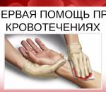 Закрытый перелом — первая помощь при закрытом переломе и меры предосторожности, отличие от открытого перелома, основные признаки закрытого перелома
