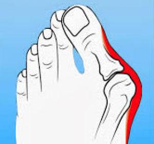 Подагра на ногах – симптоматика, диагностика и способы лечения
