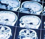 Болезнь Паркинсона впервые попробуют вылечить стволовыми клетками