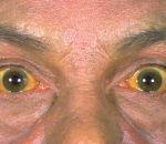 Гипербилирубинемия: виды, причины, симптомы, лечение