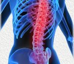 Как лечить остеохондроз в остром периоде и предовращать обострения
