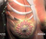 Лактостаз: признаки, симптомы, лечение и профилактика