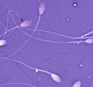 Астенозооспермия: каковы перспективы лечения