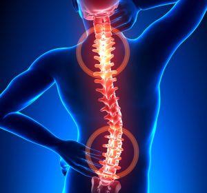 Искривление позвоночника: причины, симптомы, лечение