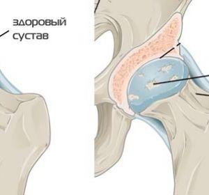 Коксартроз тазобедренного сустава — причины, симптомы, диагностика, лечение без операции и диета