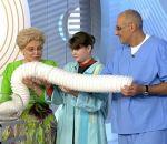 Болезнь Гиршпрунга у взрослых — аганглиоз кишечника