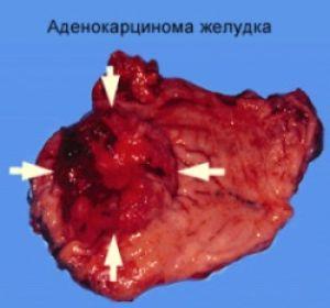 Аденокарцинома желудка: классификация, развитие, диагностика и лечение