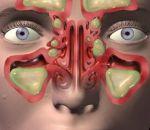 Катаральный синусит: как лечить у детей и взрослых