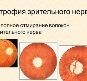Атрофия зрительного нерва: причины, симптомы, лечение
