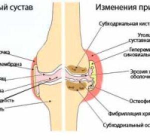 Лазеротерапия при артрозе коленного сустава: преимущества, отзывы о лечении