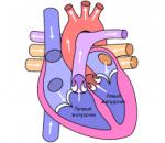 Гипертрофия левого сердечного желудочка: опасный симптомокомплекс