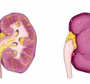 Почечная колика — причины возникновения, симптомы у мужчин и женщин, диагностика, лечение и профилактика