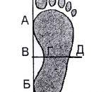 Лечение плоскостопия 3 степени — гимнастика, физиопроцедуры, массаж