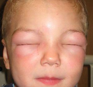 Отек Квинке — причины развития, первая помощь и антигистаминные препараты для лечения