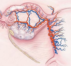 Дисфункция яичников: что это такое, препараты для лечения овариальной дисфункции