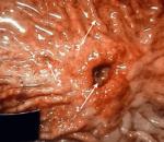 Диагностика язвы желудка — по каким симптомам выявляют заболевание