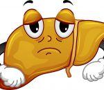 Жировой гепатоз: причины, симптомы и лечение ожирения печени