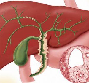 Застой в желчном пузыре — признаки, терапия медикаментами, гомеопатией, народными средствами и диетой