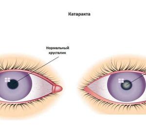 Капли от глаукомы и катаракты — список лекарственных средств с аннотацией, составом и противопоказаниями