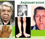 Акромегалия — причины, признаки, симптомы и лечение