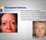 Экзофтальм (пучеглазие): причины, признаки, симптомы и лечение