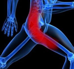 Воспаление седалищного нерва — признаки и методы терапии