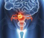 Субмукозная миома матки — причины возникновения узла, лечение народными средствами и операция