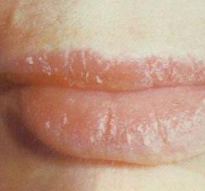Идеальные губки: как избавиться от шелушения?