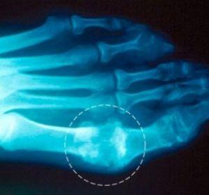 Подагрический артрит — причины, симптомы и лечение