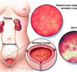 Осложнения пиелонефрита у мужчин и женщин — клиническая картина, способы терапии