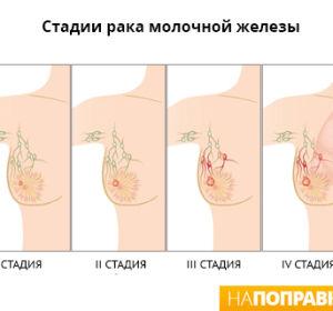 Рак молочной железы — симптомы и лечение рака груди