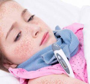 Атипичная скарлатина у детей: признаки, как лечить болезнь