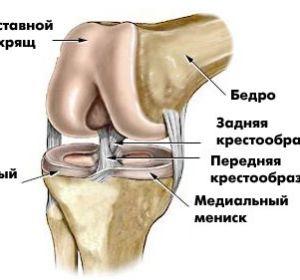 Разрыв связок коленного сустава: клиническая картина и лечение