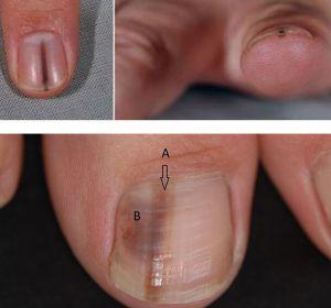 Грибковые заболевания ногтей — мифы, связанные с заболеванием, грибок ногтей и кожи рук и стоп, негрибковые поражения ногтей и кожи, последствия заболевания