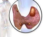 Кератоакантома кожи: причины, симптомы, лечение, профилактика, риски
