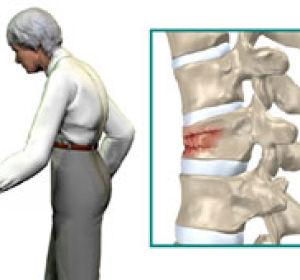 Перелом грудного отдела позвоночника: компрессионный перелом, лечение