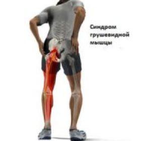 Лечение и диагностика синдрома грушевидной мышцы