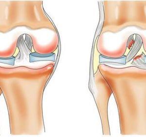 Боли в коленном суставе причины