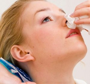Лечение носовых кровотечений — первая помощь, как остановить кровь