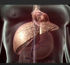 Причины цирроза печени у мужчин — первые признаки, способы терапии, осложнения
