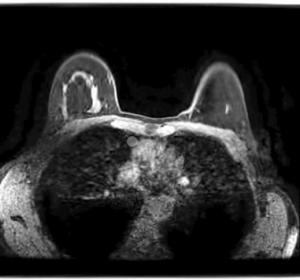 МРТ молочных желез с контрастом: что показывает, как проводится, подготовка